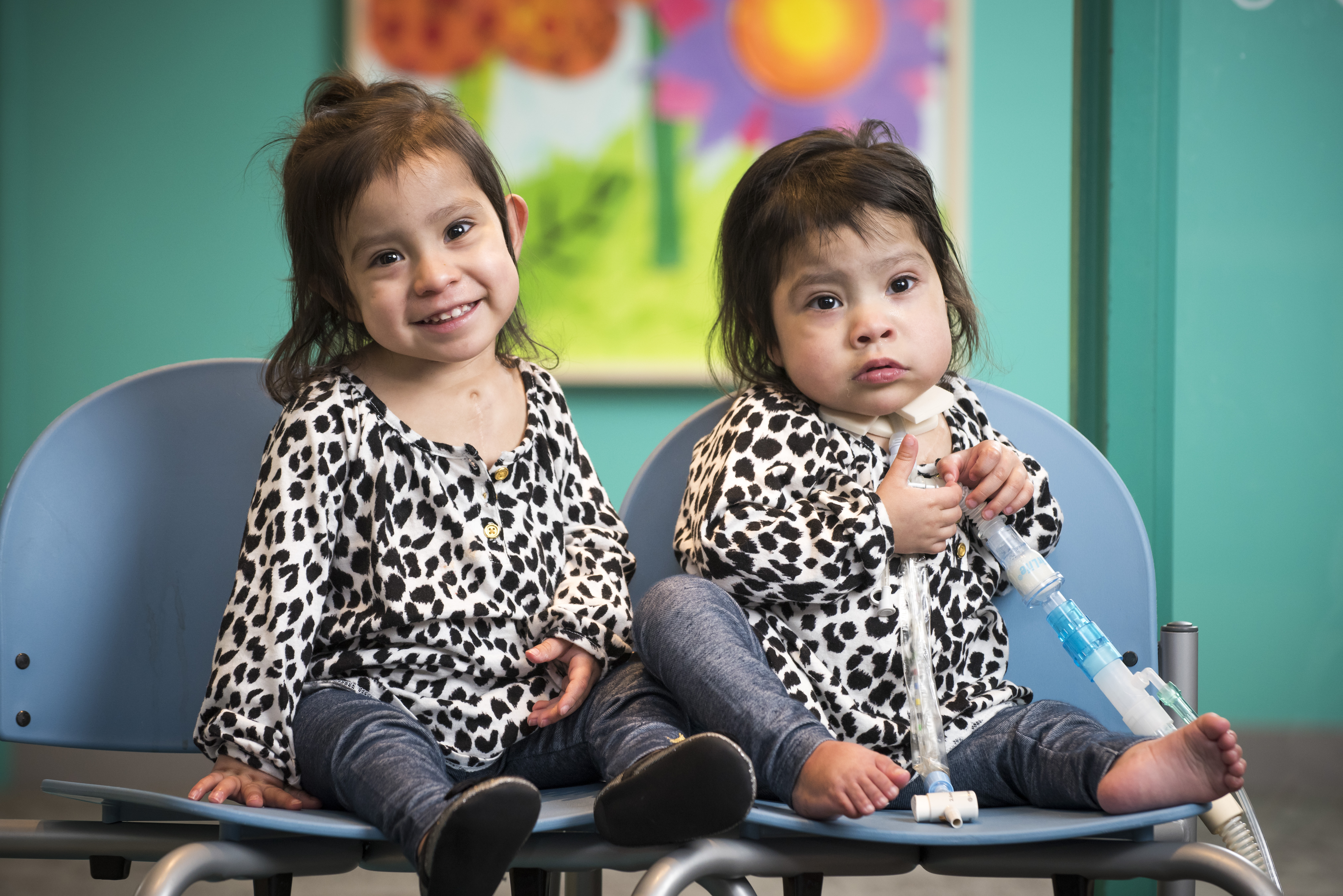 Formerly Conjoined Mata Twins | Texas Children's Hospital
