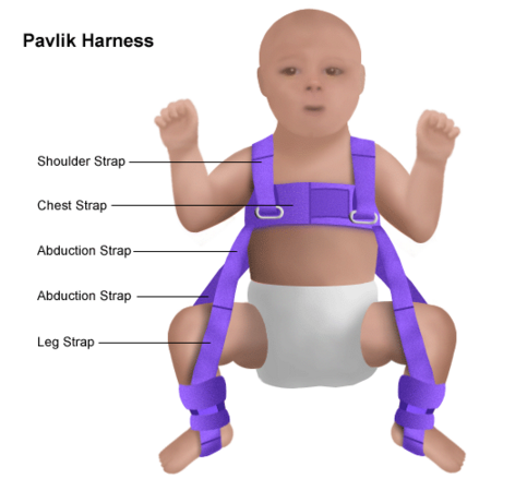 hip problems in babies