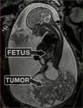 Ultrasound of Sacrococcygeal Teratoma (SCT) tumor
