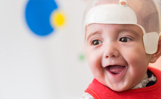 Craniosynostosis 101 Commonly Asked Questions Texas