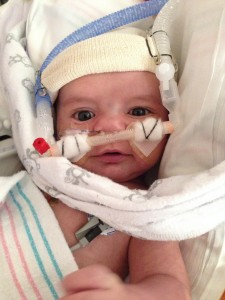 Our Son's Story: Born With Hypoplastic Left Heart Syndrome ...