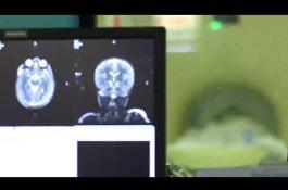 Embedded thumbnail for Q&A: Brain Tumor Program