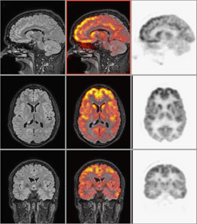 The combined images (shown in the middle column) overlay PET images on the MRI data.