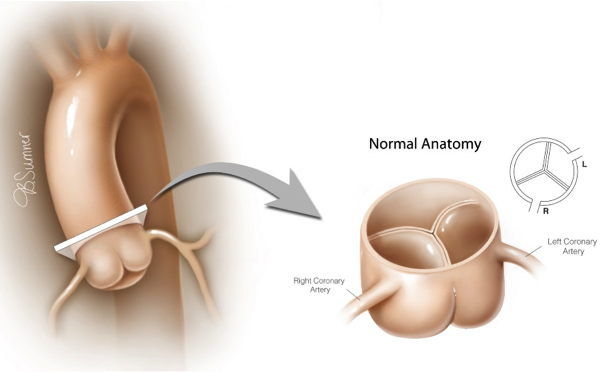 Anomalous Aortic Origin Of A Coronary Artery Aaoca Texas