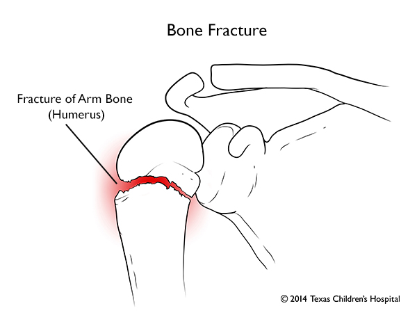 Fracture Of The Upper Arm Shoulder Elbow And Forearm