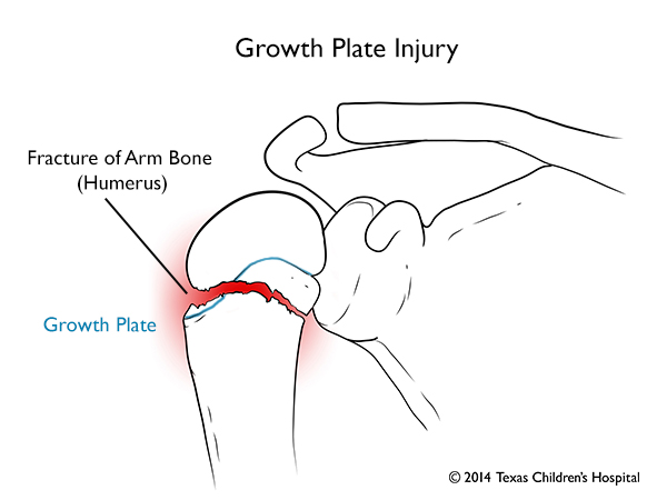 Growth Plate Injury