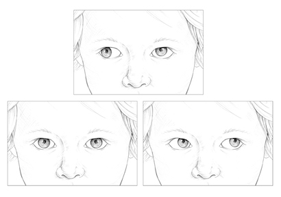 Eye movement in 6thth Cranial Nerve Palsy.