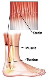 A Strain Is Damage To Muscle Or Tendon