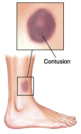 A Contusion Bruise Is Caused By Damage To Blood Vessels In And Under The Skin